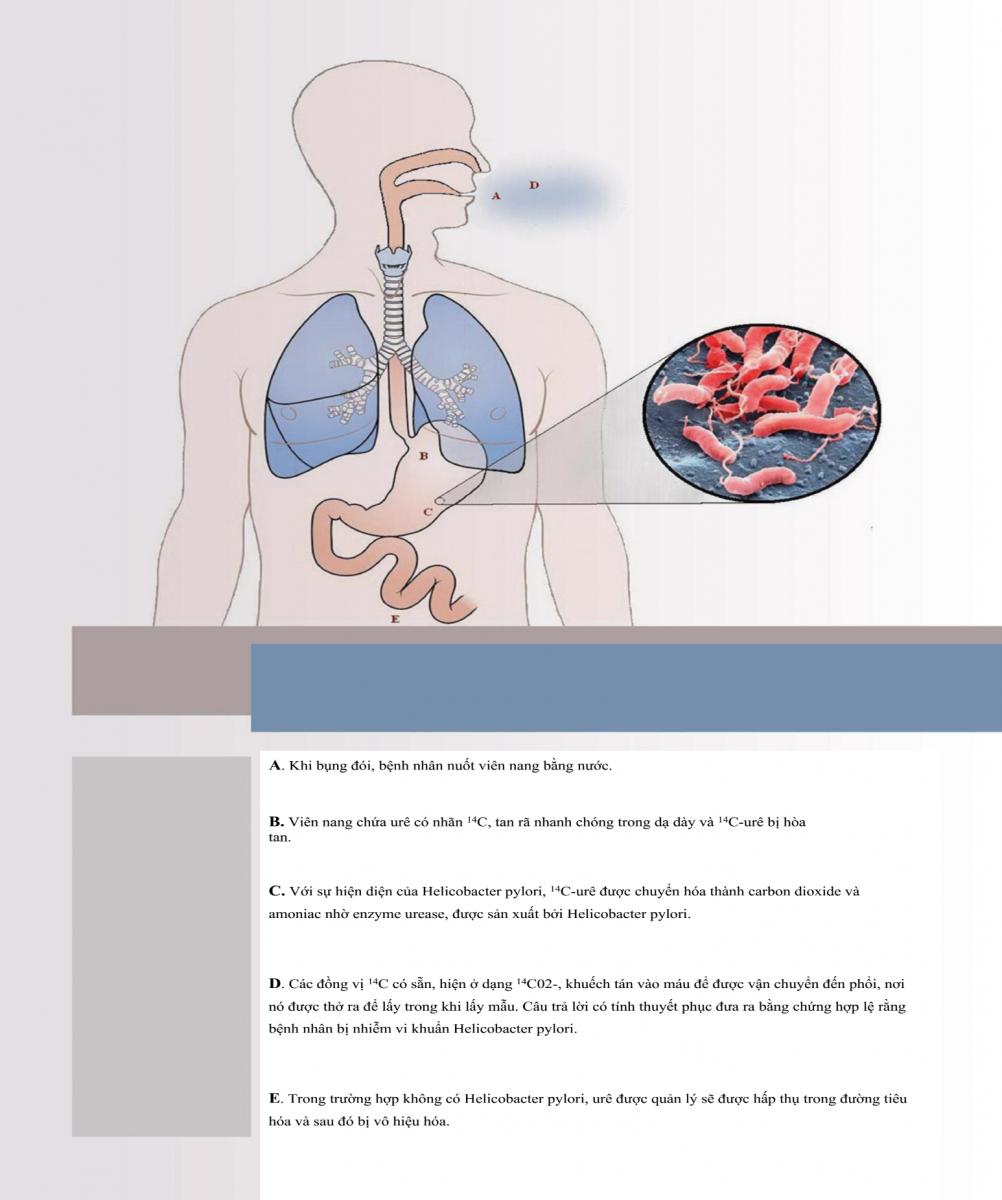 Máy xét nghiệm H.pylori bằng hơi thở HELIGUIDE