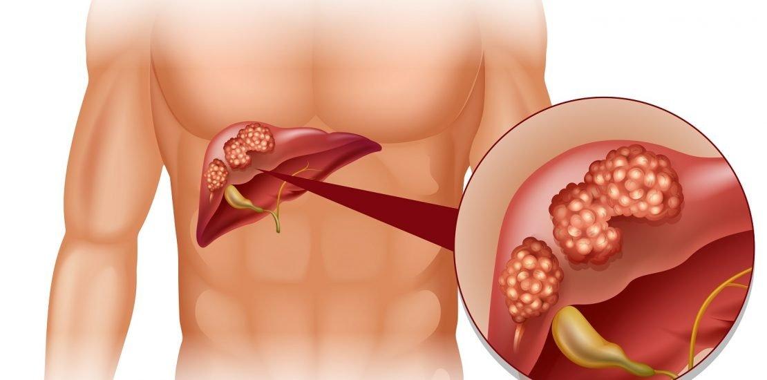 Viêm gan B: Nguyên nhân, con đường lây truyền, triệu chứng và cách phòng ngừa